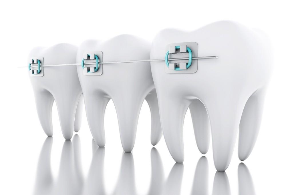 aparat dentar ceramic craiova, aparat dentar safir craiova, aparat dentar metalic craiova